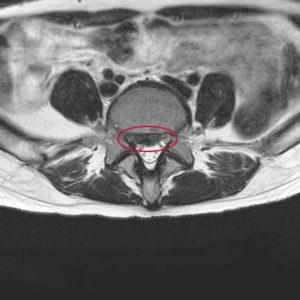 腰椎椎間板ヘルニアの手術予定→キャンセルになりました